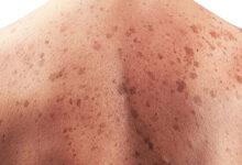 Photo of چگونه لک های قهوه ای گردن و پوست را از بین ببریم؟