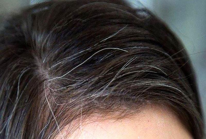 سفید شدن مو قبل از 40 سالگی