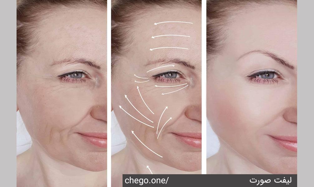 لیفت کردن چهره