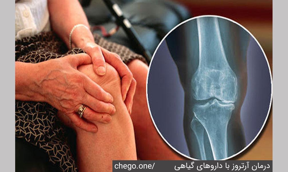 درمان آرتروز توسط انواع داروهای گیاهی