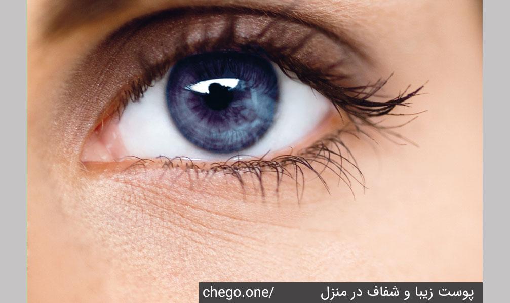 اطراف چشم