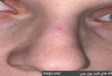 لکه های قرمز روی بینی