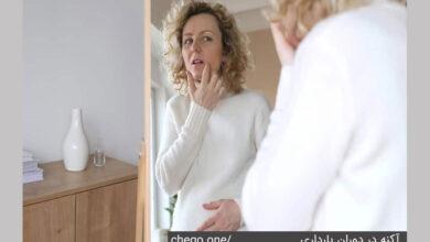 آکنه بارداری
